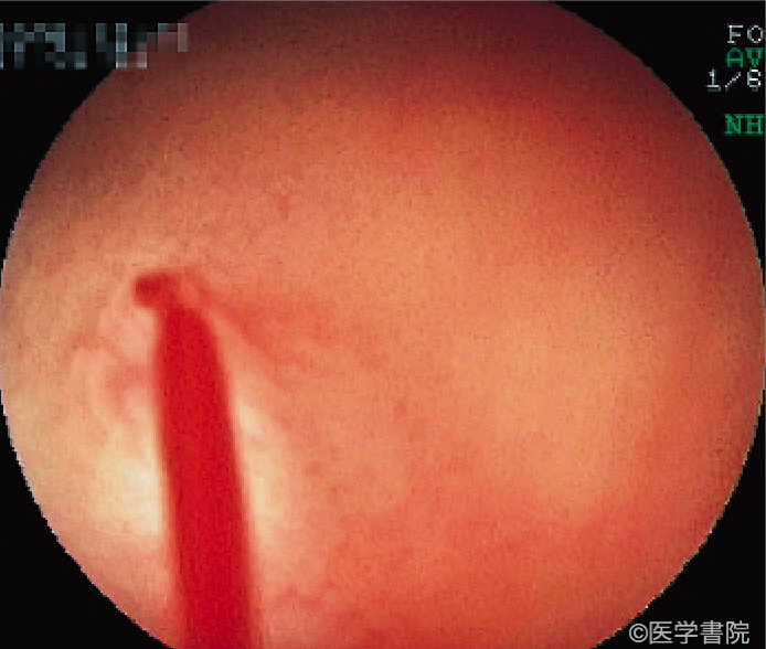 Fig. 2 Type 2a in the ileum with pulsatile bleeding in water.